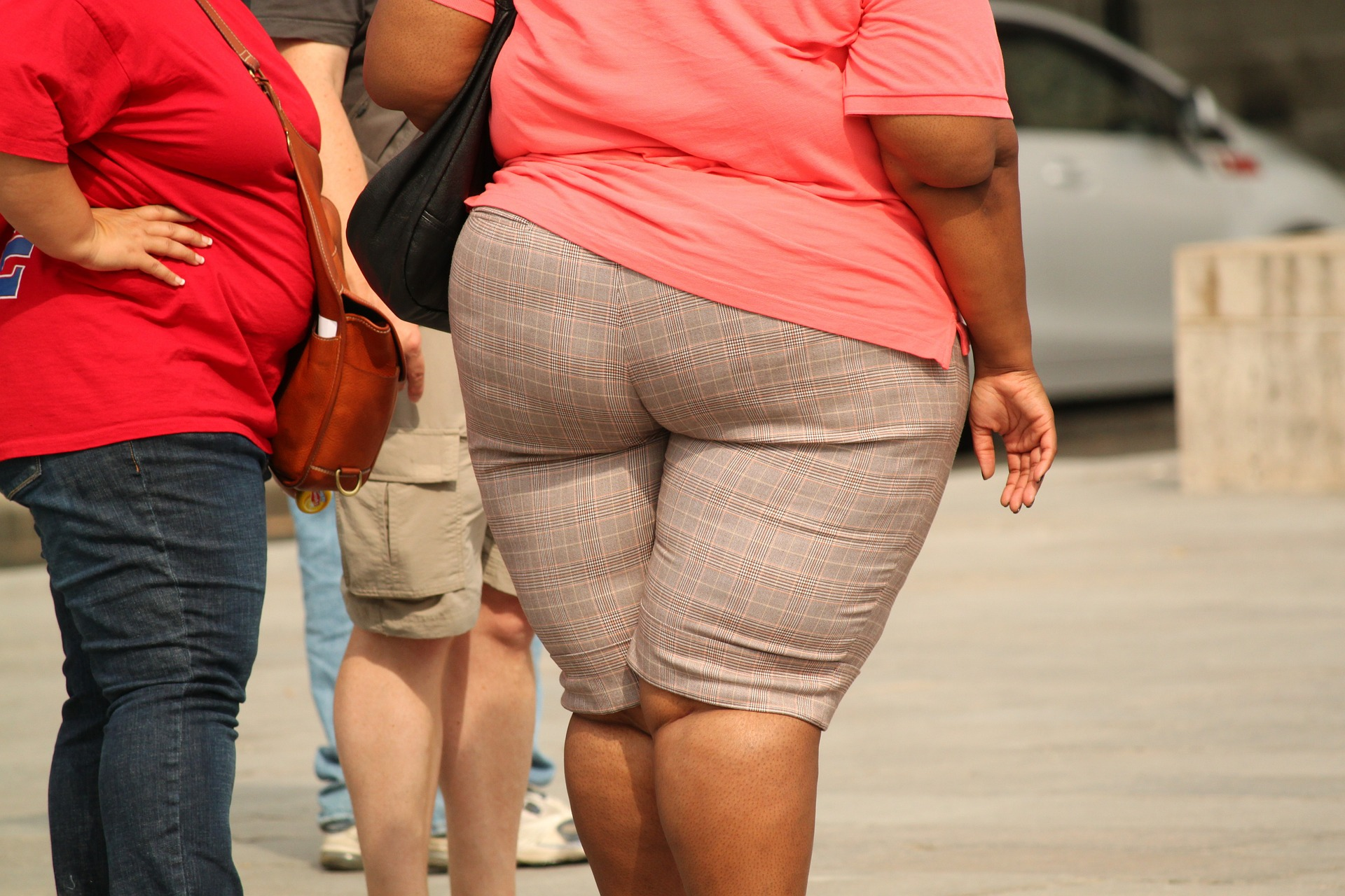 Obesity shortens your life